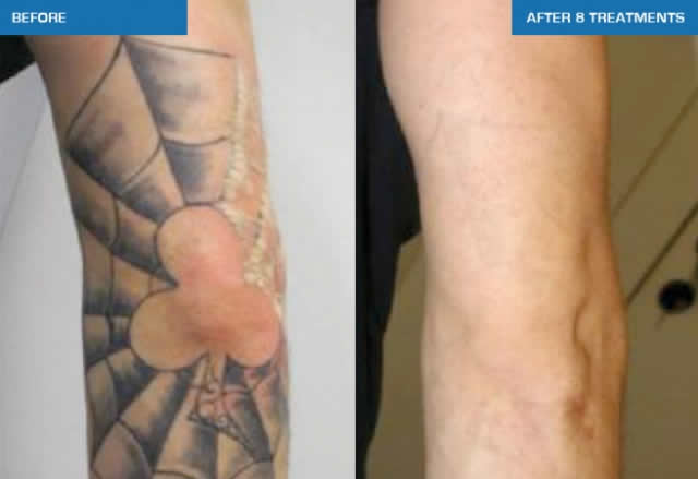 tattoo-removal-sydney-gallery 15